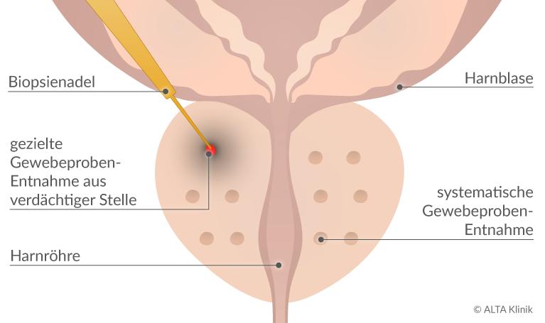 hólyag érzékenység Prostatitis hookah