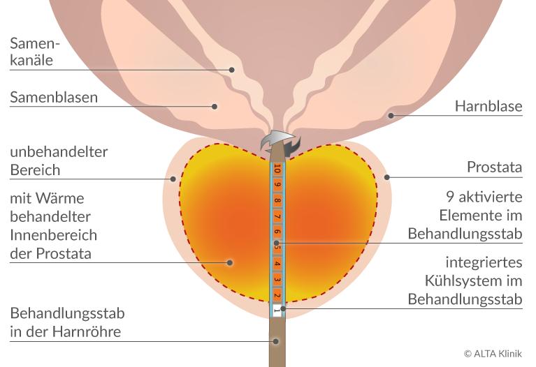 Austria Prostatricum Plus Mittel zur Bekämpfung von Prostatitis