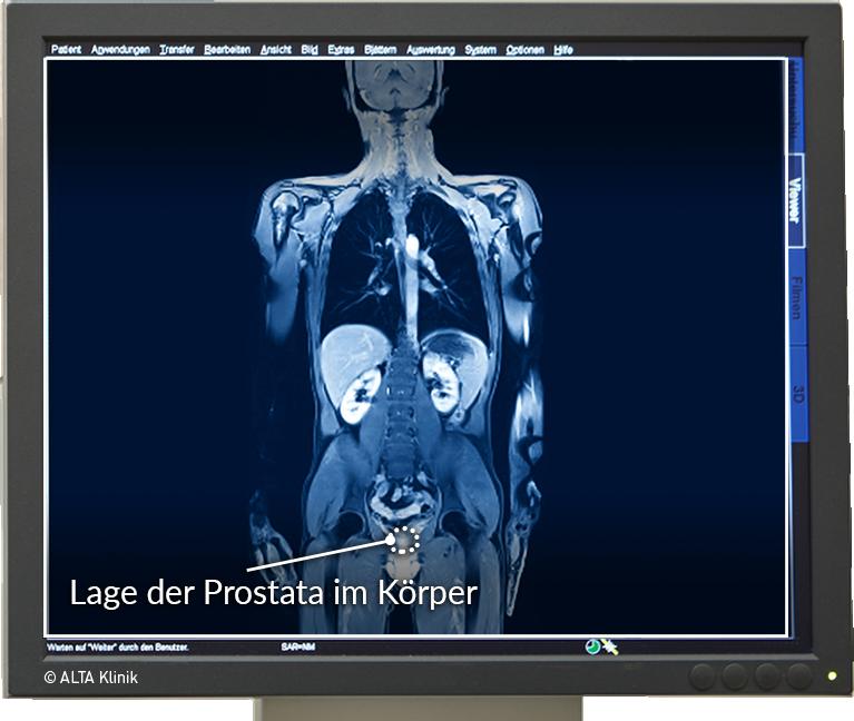 prostata gutartiger tumor