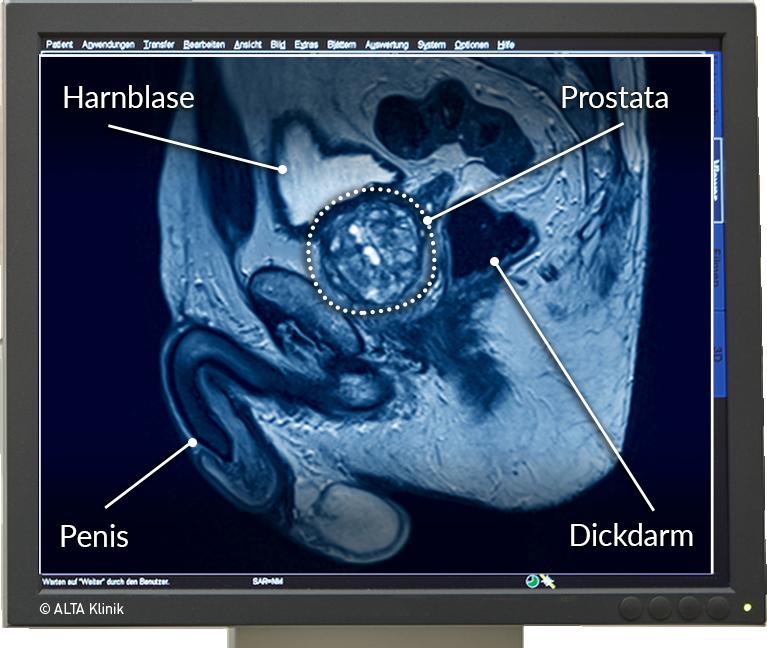 Haben frauen prostata | Prostata: 5 Symptome für eine
