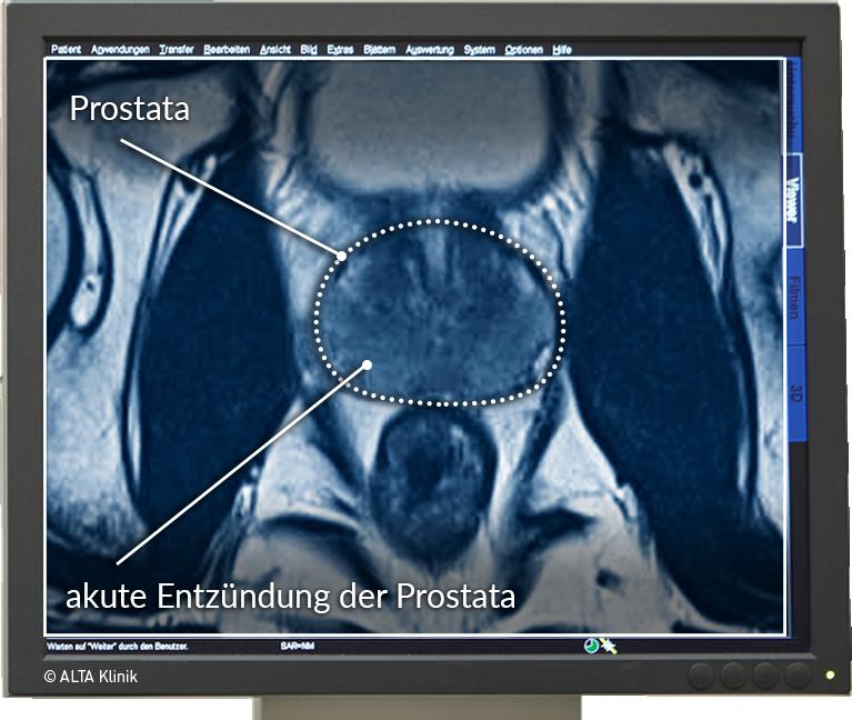 prostataentzündung dauer der behandlung