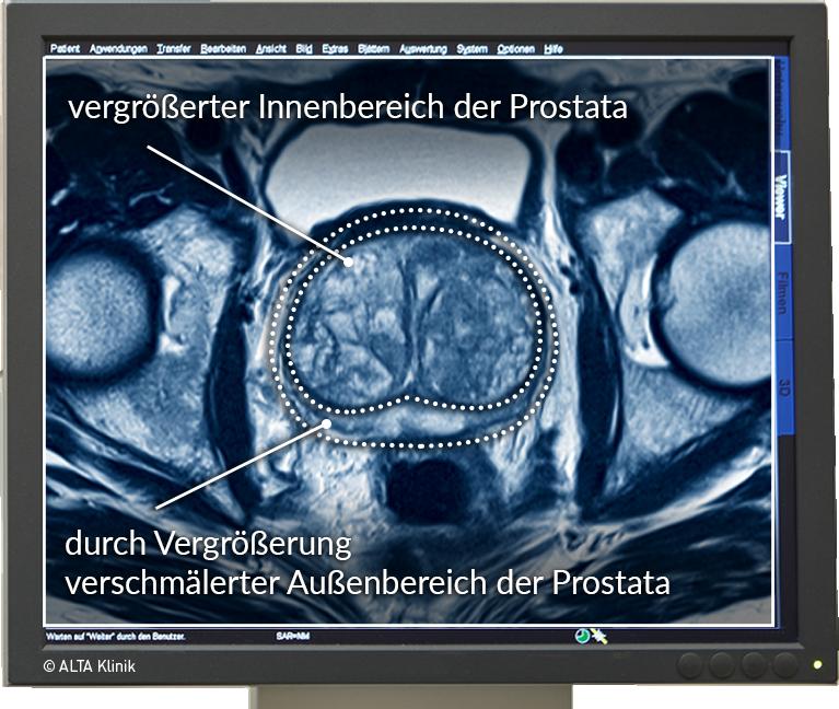 Prostatavergrößerung - Ursachen abklären