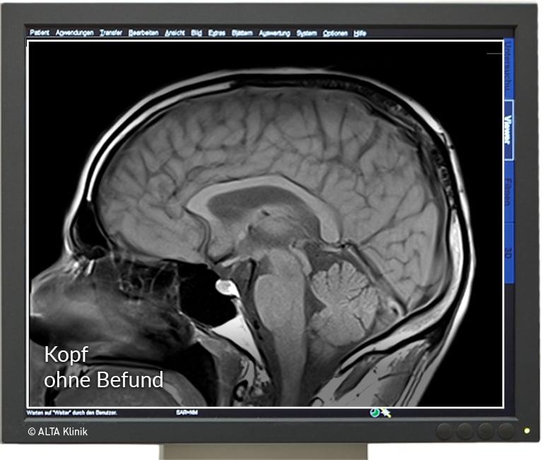 Kopf Mrt Ursachen Für Kopfschmerzen Schwindel Und Druckgefühl Finden