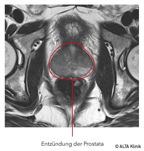 Prostataentzündung im MRT