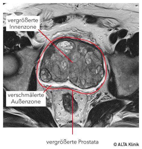 prostata psa wert 8 Prostatitis a Kegelből