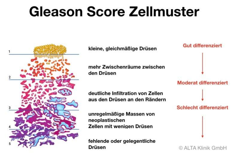 Gleason Score Zellmuster