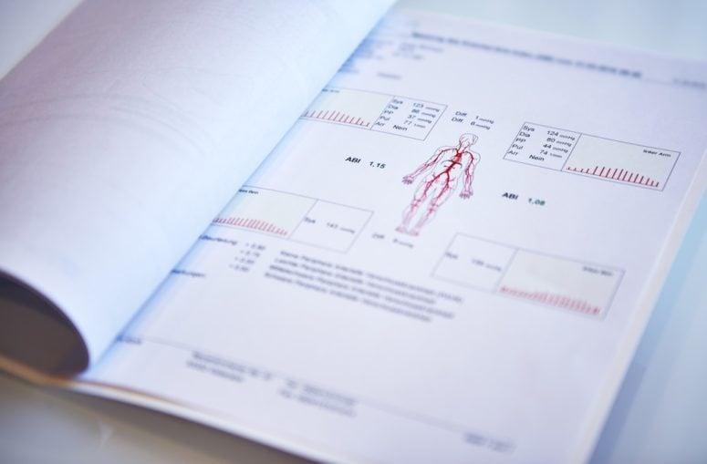 Herz Kreislauf Check-Up Programm