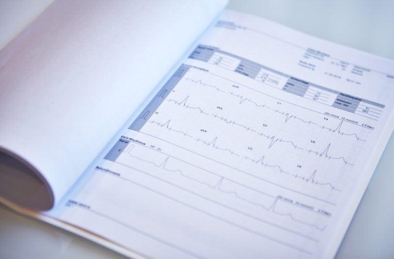 Herzanalyse ALTA Check-Up
