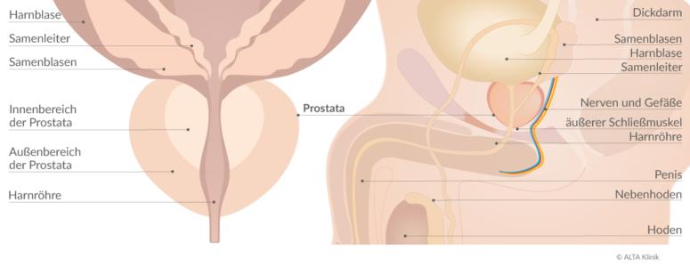 Prostata-Schaubild Prostatakrebs